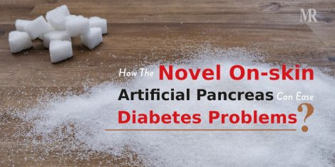 Artificial Pancreas for Diabetes