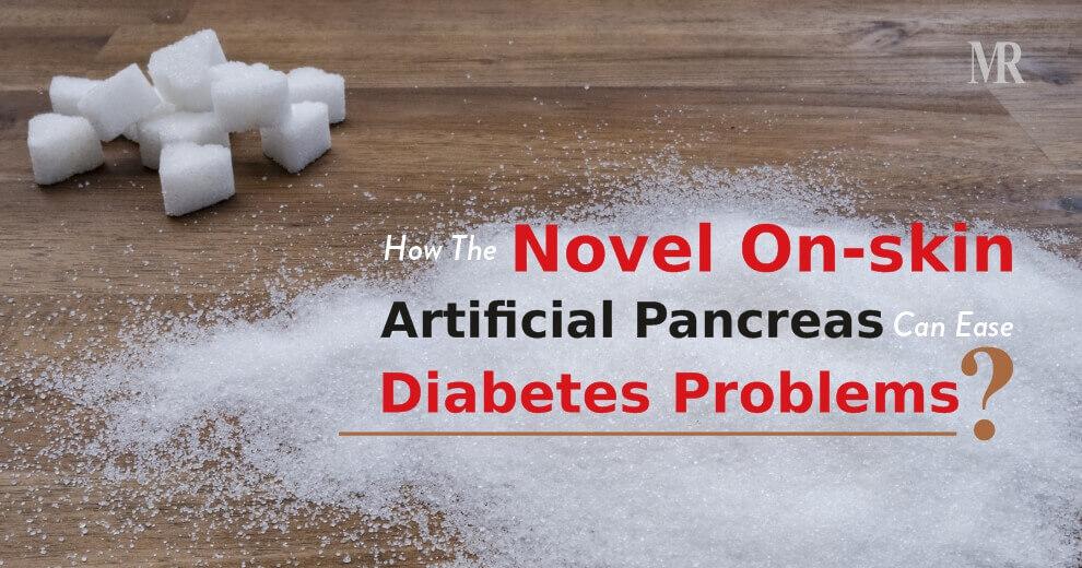 Artificial Pancreas for Diabetes