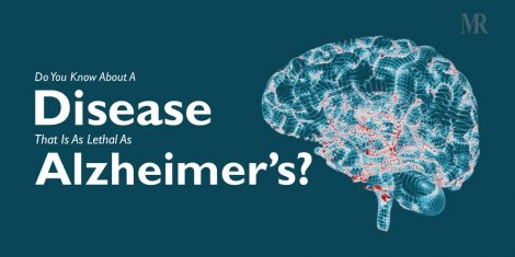 Disease Lethal As Alzheimer